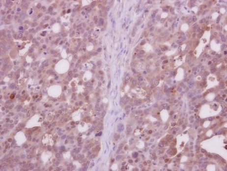 Immunohistochemistry (Formalin/PFA-fixed paraffin-embedded sections) - Anti-CDC37L1 antibody (ab154692)