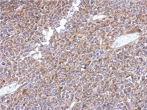 Immunohistochemistry (Formalin/PFA-fixed paraffin-embedded sections) - Anti-KLHL1 antibody (ab154704)