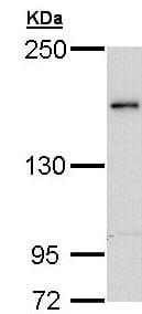 Western blot - Anti-Tex14 antibody - N-terminal (ab154706)