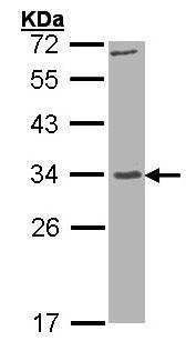 Western blot - Anti-Kallikrein 7 antibody (ab154707)