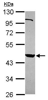 Western blot - Anti-PSG9 antibody (ab154709)