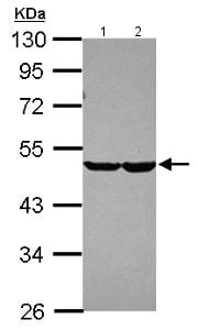 Western blot - Anti-CHST7 antibody (ab154726)