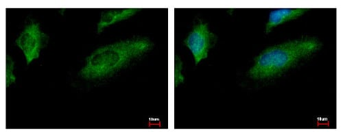Immunocytochemistry/ Immunofluorescence - Anti-CoCoA antibody (ab154731)