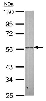 Western blot - Anti-PSG9 antibody (ab154733)