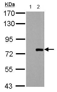 Western blot - Anti-PAK6 antibody (ab154752)