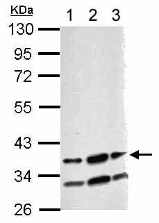 Western blot - Anti-RBM4 antibody (ab154760)