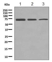 Western blot - Anti-EHD2 antibody [EPR9821] (ab154784)