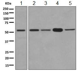 Western blot - Anti-PTBP2 antibody [EPR9890] (ab154787)