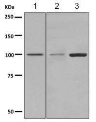 Western blot - Anti-TRPM5 antibody [EPR7504] (ab154788)