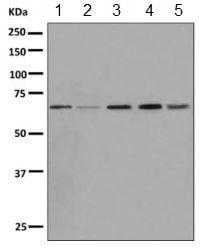 Western blot - Anti-ZNF503 antibody [EPR10194] (ab154789)