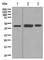Western blot - Anti-ZDHHC18 antibody [EPR9871] (ab154790)