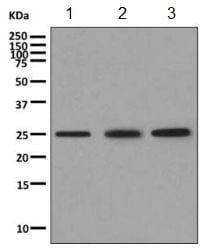 Western blot - Anti-VPS28 antibody [EPR9880] (ab154793)