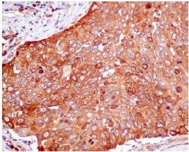 Immunohistochemistry (Formalin/PFA-fixed paraffin-embedded sections) - Anti-PKM2 antibody [EPR10139] (ab154816)