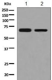 Western blot - Anti-PIP5K1 beta antibody [EPR9268] (ab154818)