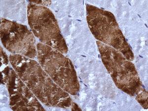 Immunohistochemistry (Formalin/PFA-fixed paraffin-embedded sections) - Anti-PEN2 antibody [EPR9200] (ab154830)
