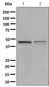 - Anti-PARVB antibody [EPR11109(B)] (ab154840)