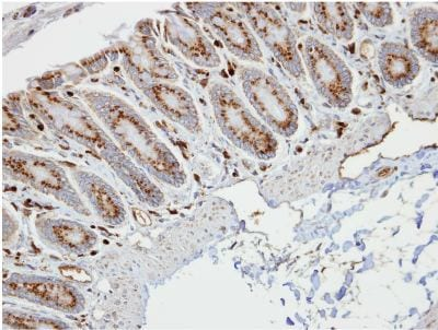 Immunohistochemistry (Formalin/PFA-fixed paraffin-embedded sections) - Anti-RBP1 antibody (ab154881)