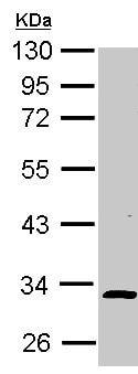 Western blot - Anti-ALS2CR1 antibody (ab154884)