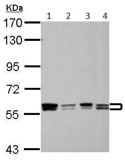 Western blot - Anti-PTBP1  antibody (ab154887)