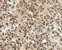 Immunohistochemistry (Formalin/PFA-fixed paraffin-embedded sections) - Anti-PTBP1  antibody (ab154887)