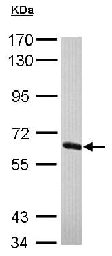 Western blot - Anti-NXF2 antibody (ab154891)