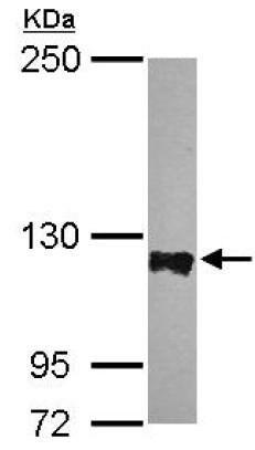 Western blot - Anti-PTPN12 antibody - N-terminal (ab154892)
