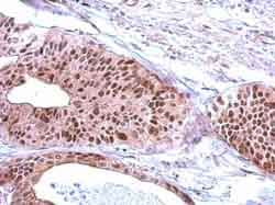 Immunohistochemistry (Formalin/PFA-fixed paraffin-embedded sections) - Anti-RFC3 antibody (ab154899)