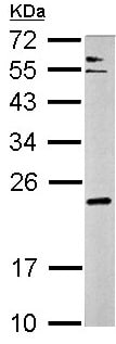 Western blot - Anti-CPLX3 antibody (ab154909)