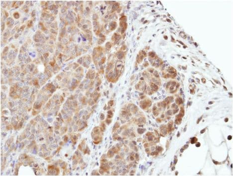 Immunohistochemistry (Formalin/PFA-fixed paraffin-embedded sections) - Anti-MEK3 antibody (ab154913)