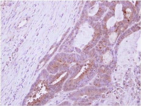 Immunohistochemistry (Formalin/PFA-fixed paraffin-embedded sections) - Anti-DAZ3 antibody (ab154915)