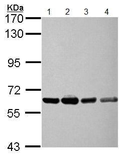Western blot - Anti-NXF3 antibody (ab154916)