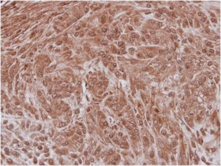 Immunohistochemistry (Formalin/PFA-fixed paraffin-embedded sections) - Anti-NXF3 antibody (ab154916)