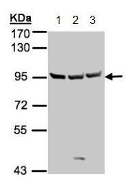 Western blot - Anti-Sema6A antibody (ab154938)