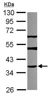 Western blot - Anti-THAP11 antibody (ab154942)