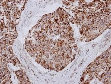 Immunohistochemistry (Formalin/PFA-fixed paraffin-embedded sections) - Anti-MRPL12 antibody (ab154961)
