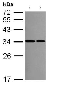 Western blot - Anti-RPS2 antibody (ab154972)