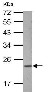 Western blot - Anti-ZNF22 antibody (ab155002)