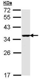 Western blot - Anti-BNIP3L antibody (ab155010)