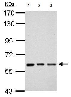 Western blot - Anti-FLJ12644 antibody (ab155023)
