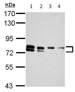 Western blot - Anti-TBC1D15 antibody (ab155035)