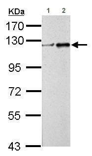 Western blot - Anti-ZNF711 antibody (ab155051)