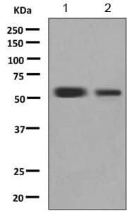 Western blot - Anti-TdT antibody [EPR9732] (ab155082)
