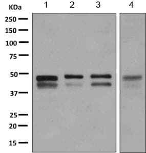 Western blot - Anti-ZFYVE19 antibody [EPR9789] (ab155085)