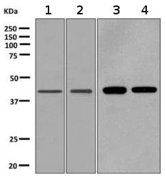 Western blot - Anti-GPCR TGR7 antibody [EPR10597] (ab155099)