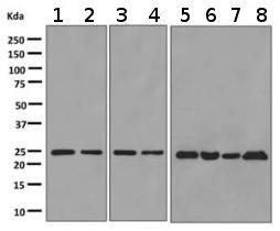 Western blot - Anti-Ran antibody [EPR10791(B)] (ab155103)