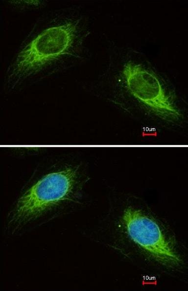 Immunocytochemistry/ Immunofluorescence - Anti-Cytokeratin 19 antibody (ab155118)