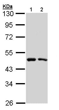 Western blot - Anti-SIL1 antibody - C-terminal (ab155121)