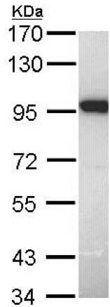 Western blot - Anti-DUSP16 antibody - C-terminal (ab155139)