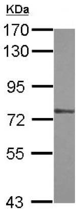 Western blot - Anti-ZXDA antibody (ab155141)