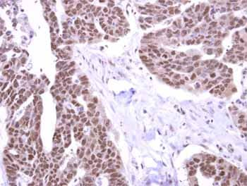 Immunohistochemistry (Formalin/PFA-fixed paraffin-embedded sections) - Anti-STK31 antibody (ab155172)